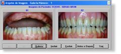 Software Dentalis Protetics