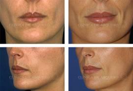 Encomenda Aumento dos labios