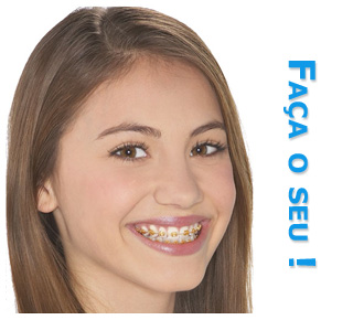 Encomenda Ortodontia