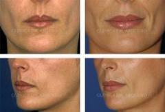 Aumento dos labios