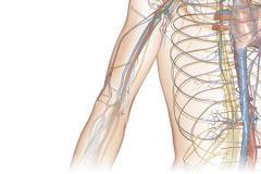 Radiologia de Interventional